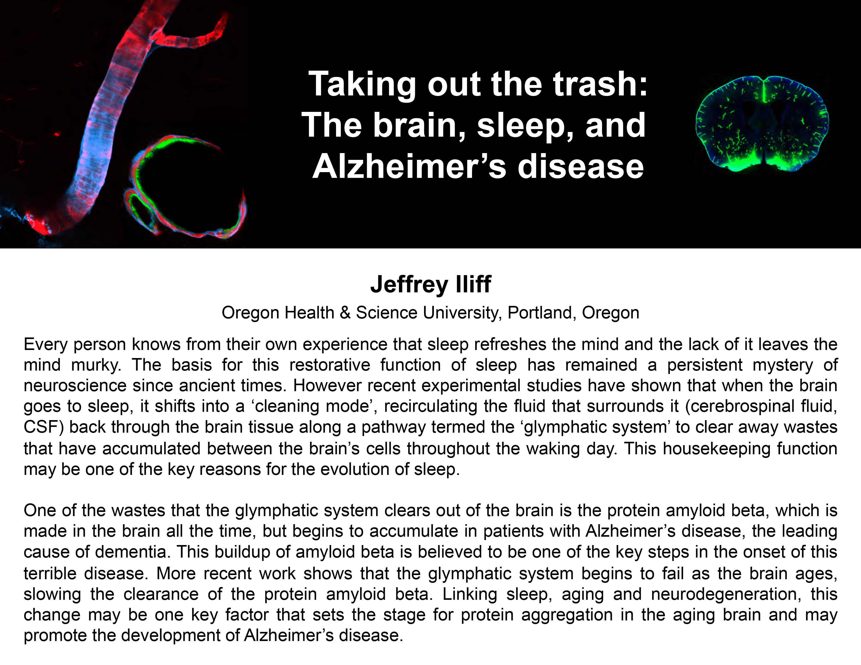 Plenary: TAKING OUT THE TRASH: THE BRAIN, SLEEP, AND ALZHEIMER